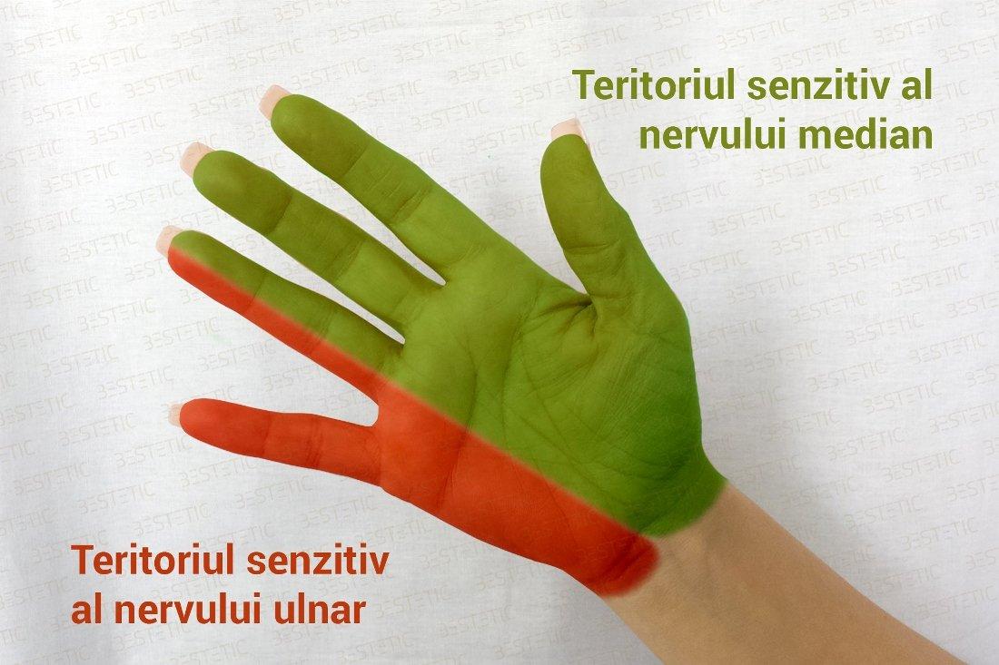 dureri la încheietura mâinii și amorțeală a degetelor