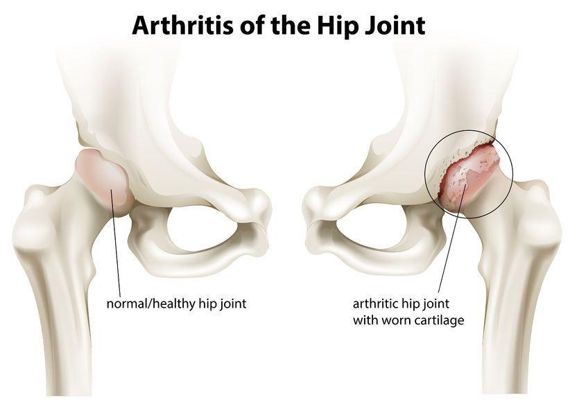 exacerbarea artrozei articulației șoldului)