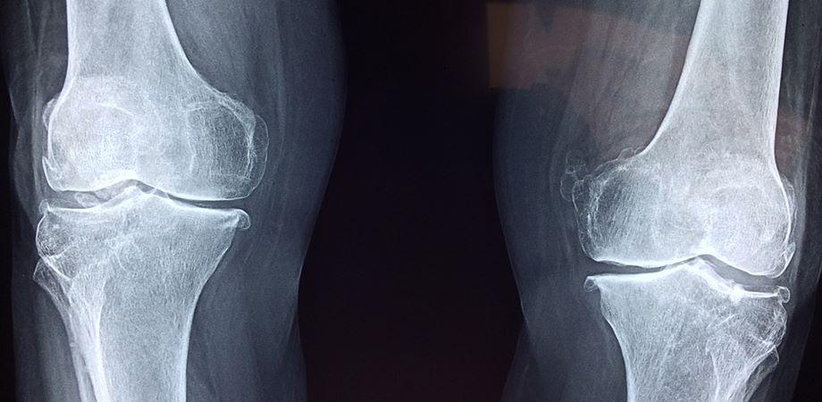 hepatoza genunchiului tratament de 3 grade durerea de genunchi nu poate merge