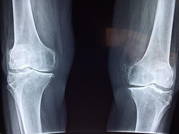 pentru medicația articulațiilor genunchiului)