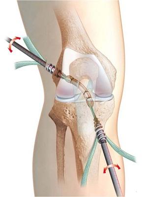 recuperare după imobilizarea genunchiului