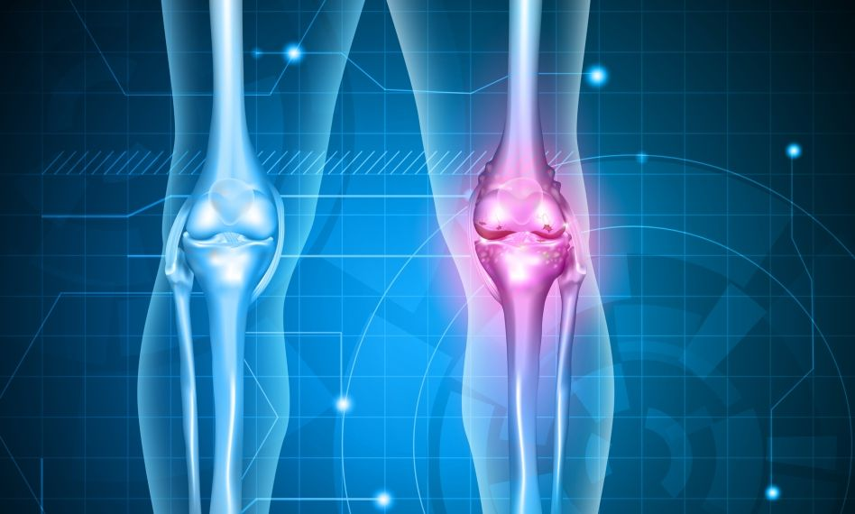 schema de tratament pentru artroza genunchiului 3 grade