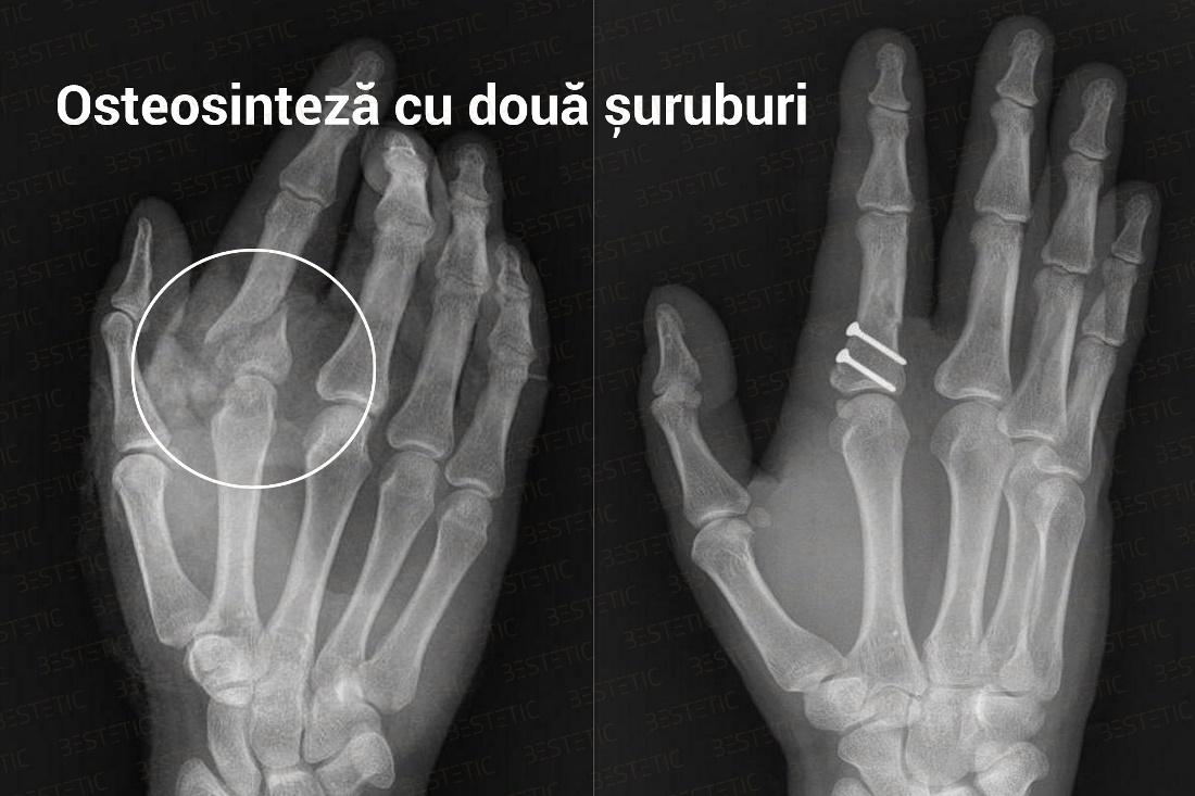 recuperare dupa fractura antebrat)