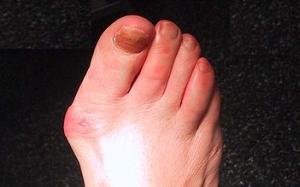tratamentul artrozei piciorului și degetelor de la picioare osteoartrita articulațiilor genunchiului cum să tratezi