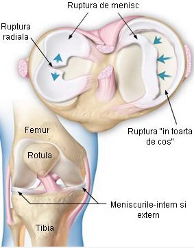 traumatism la meniscul genunchiului